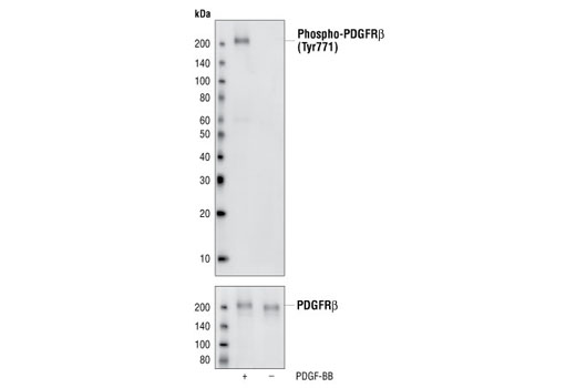 Western blot analysis of extracts from NIH/3T3 cells untreated or treated with PDGF-BB, using Phospho-PDGF Receptor beta (Tyr771) (76D6) Rabbit mAb (upper) or PDGF Receptor beta (28E1) Rabbit mAb #3169.