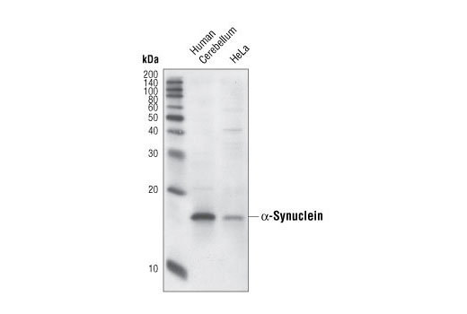Western blot analysis of extracts from human cerebellum and HeLa cells, using α-Synuclein (Syn204) Mouse mAb.