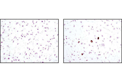 Immunohistochemical analysis of paraffin-embedded 3T3-L1 cells, control (left) or differentiated (right), using Perilipin-1 (D418) Antibody.