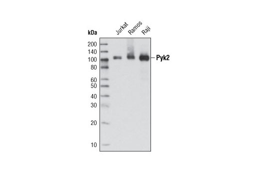 Western blot analysis of extracts from various cell lines using Pyk2 (5E2) Mouse mAb.