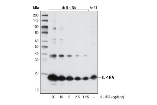 Western blot analysis of variable amounts of recombinant human IL-1RA protein and A431 cell lysate using IL-1RA (20D8) Mouse mAb.