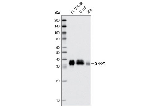 Monoclonal Antibody - SFRP1 (D5A7) Rabbit mAb - Immunoprecipitation, Western Blotting, UniProt ID Q8N474, Entrez ID 6422 #3534 - Developmental Biology