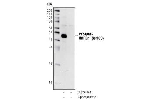 Western blot analysis of extracts from Jurkat cells, treated with Calyculin A #9902 alone (100 nM for 20 min) or together with λ-phosphatase, using Phospho-NDRG1 (Ser330) Antibody.