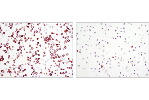Immunohistochemical analysis of paraffin-embedded MKN45 cell pellets, control (left) or SU11274-treated (right), using Phospho-Met (Tyr1234/1235) (D26) XP<sup>®</sup> Rabbit mAb #3077.