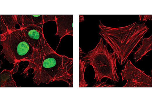 Confocal immunofluorescent analysis of NTERA2 (left) and HeLa (right) cells using Sox2 (D6D9) XP<sup>®</sup> Rabbit mAb (green). Actin filaments have been labeled with DY-554 phalloidin (red).