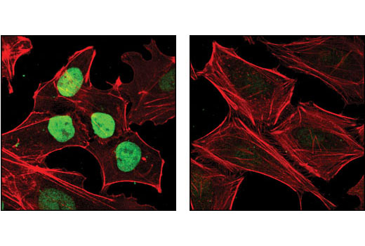 Confocal immunofluorescent analysis of NTERA2 cells (left) and HeLa cells (right) using Nanog Antibody (green). Actin filaments have been labeled with DY-554 phalloidin (red).