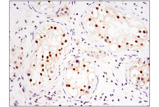Immunohistochemical analysis of paraffin-embedded human testis using DNMT3A (D23G1) Rabbit mAb.