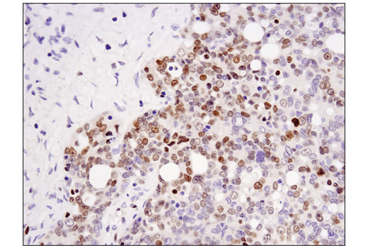 Immunohistochemical analysis of paraffin-embedded human serous papillary carcinoma of the ovary using DNMT3A (D23G1) Rabbit mAb.