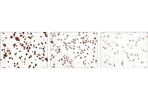 Immunohistochemical analysis of paraffin-embedded SHSY5Y cell pellet (left, high), HCT116 cell pellet (middle, moderate) and T47D cell pellet (right, low) using DNMT3A (D23G1) Rabbit mAb.