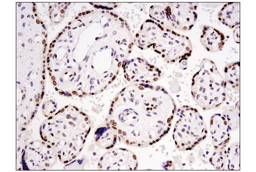 Immunohistochemical analysis of paraffin-embedded human placenta using DNMT3A (D23G1) Rabbit mAb.