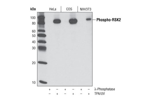 Monoclonal Antibody - Phospho-RSK2 (Ser227) (D53A11) Rabbit mAb, UniProt ID P51812, Entrez ID 6195 #3556