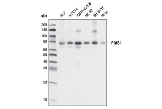Western Blotting - PIAS1 (D33A7) XP® Rabbit mAb