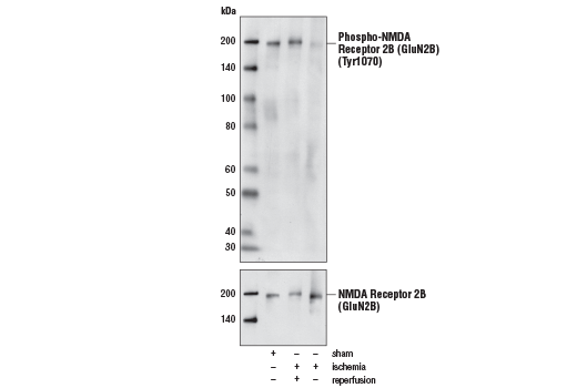 Polyclonal Antibody Western Blotting Behavioral Response to Pain