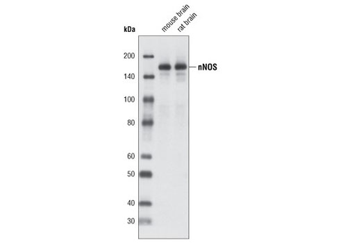 Western blot analysis of extracts from mouse and rat brain using nNOS (C7D7) Rabbit mAb.