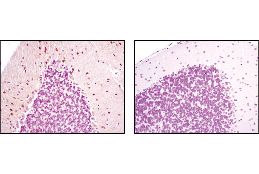 Immunohistochemical analysis of paraffin-embedded wild-type (+/+, left) or nNOS null (-/-, right) mouse brain, using nNOS (C7D7) Rabbit mAb.
