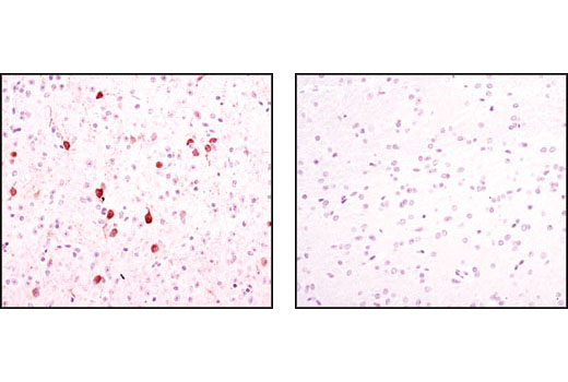 Immunohistochemical analysis of paraffin-embedded wild-type (+/+, left) or nNOS null (-/-, right) mouse brain, using nNOS (C12H1) Rabbit mAb.