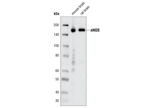 Western blot analysis of extracts from mouse and rat brain using nNOS (C12H1) Rabbit mAb.