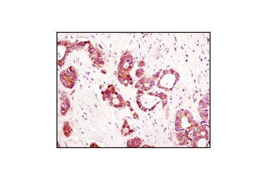 Immunohistochemical analysis of paraffin-embedded human colon carcinoma using LDHA/LDHC (C28H7) Rabbit mAb.