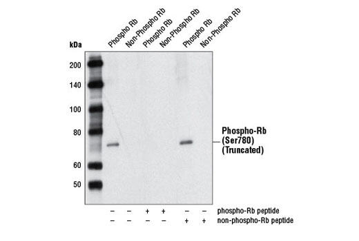 Western blot analysis of recombinant truncated Rb, without or with Rb blocking peptide, using Phospho-Rb (Ser780) (C84F6) Rabbit mAb.
