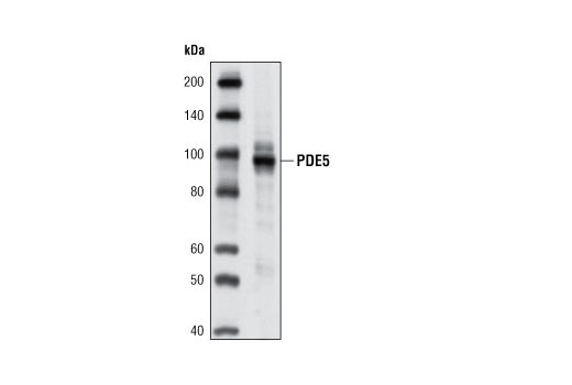 Polyclonal Antibody Immunoprecipitation Regulation of Map Kinase Activity - count 20