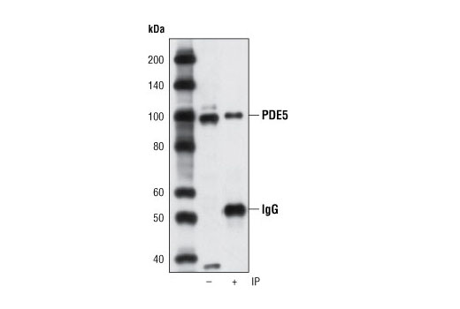 Immunoprecipitation Image 1: PDE5 (P434) Antibody