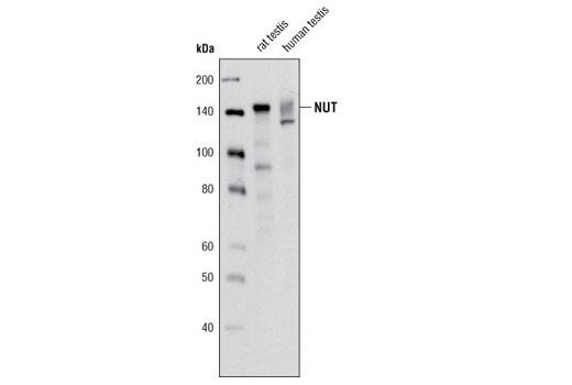 Monoclonal Antibody - NUT (C52B1) Rabbit mAb, UniProt ID Q86Y26, Entrez ID 256646 #3625, Chromatin Regulation / Acetylation