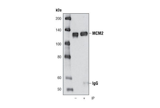 Immunoprecipitation of MCM2 from HeLa cell lysates using MCM2 (D7G11) XP<sup>®</sup> Rabbit mAb followed by western blot using the same antibody. Lane 1 is 5% input.