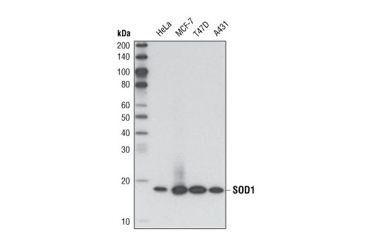 Western blot analysis of extracts from various cell lines using SOD1 (71G8) Mouse mAb.