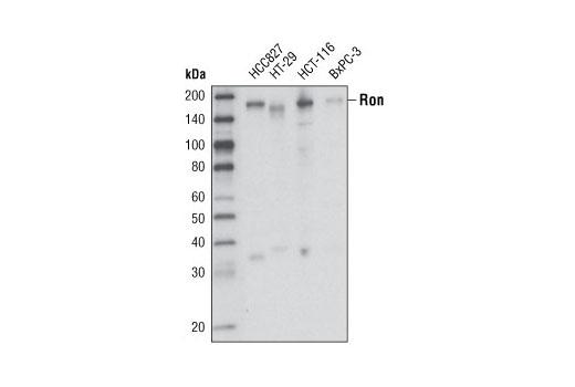 Monoclonal Antibody - Ron (1B5) Mouse mAb - Western Blotting, UniProt ID Q04912, Entrez ID 4486 #4269 - Primary Antibodies