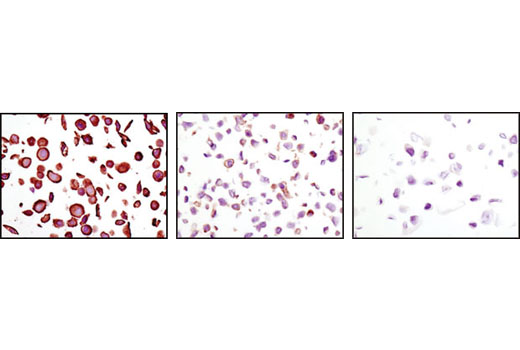 Immunohistochemical analysis of paraffin-embedded MDA-MB-468 (amplified EGFR, left), HT-29 (low EGFR, middle) and CAMA-1 (EGFR negative, right) cells using EGF Receptor (D38B1) XP<sup>®</sup> Rabbit mAb.
