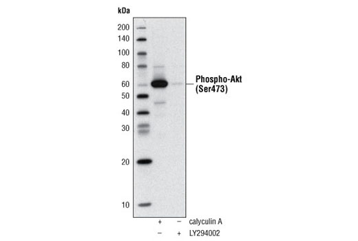 Western blot analysis of extracts of Jurkat cells, treated with either Calyculin A #9902 or LY294002 #9901, using Phospho-Akt (Ser473) (D9E) XP<sup>®</sup> Rabbit mAb (Biotinylated) #5012 and detected with Streptavidin-HRP #3999.