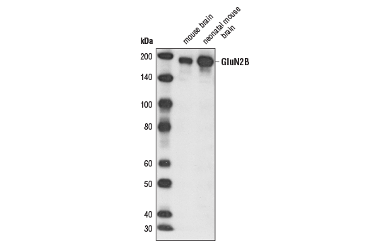 Western blot analysis of extracts from mouse and neonatal mouse brain using NMDA Receptor2B (GluN2B) (D15B3) Rabbit mAb.