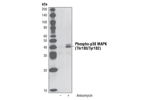 Western blot analysis of p38 MAPK Control Cell Extracts #9213, untreated or anisomycin-treated, using Phospho-p38 MAPK (Thr180/Tyr182) (3D7) Rabbit mAb (Biotinylated).