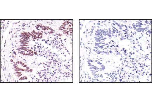 Immunohistochemical analysis of paraffin-embedded human colon carcinoma using Survivin (71G4B7E) Rabbit mAb in the presence of control peptide (left) or Survivin Blocking Peptide #1037 (right).