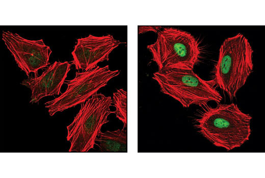 Confocal immunfluorescent analysis of HeLa cells, untreated (left) and UV-treated (right), using Phospho-SMC1 (Ser360) Antibody (green). Actin filaments have been labeled with DY-554 phalloidin (red).