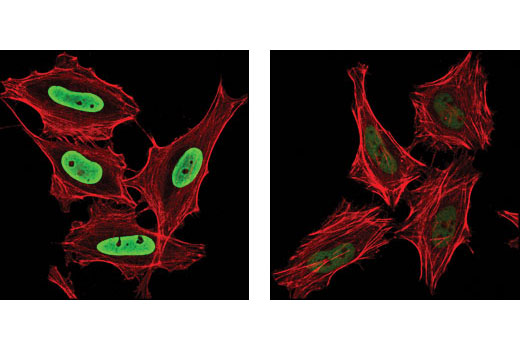 Confocal immunofluorescent analysis of HeLa cells, treated with TSA #9950 (left) and untreated (right), using Acetyl-Histone H3 (Lys9) (C5B11) Rabbit mAb (Alexa Fluor<sup>®</sup> 488 Conjugate) (green). Actin filaments have been labeled with DY-554 phalloidin (red).