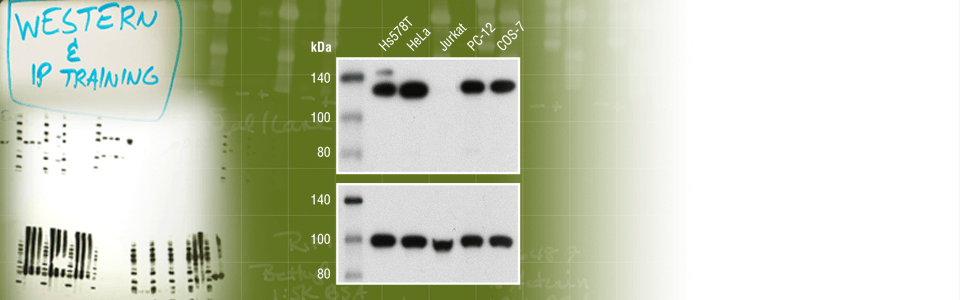 Need western blot loading controls?