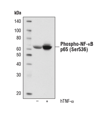 Western blot analysis of NF-κB Control Cell Extracts #9243 from HeLa cells