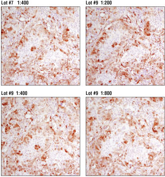 IHC analysis of adjacent sections of paraffin-embedded human colon carcinoma