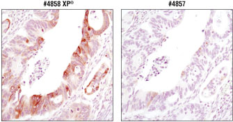 Immunohistochemical analysis of paraffin-embedded colon carcinoma.