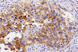 IHC image of PD-L1 (E1L3N) XP Rabbit mAb #13684