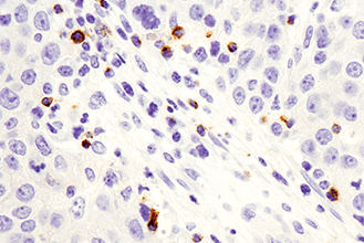IHC image of LAG3 (D2G4O™) XP Rabbit mAb #15372