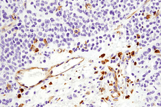IHC image of VISTA (D1L2G™) XP Rabbit mAb #64953