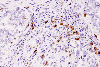 IHC image of ICOS (D1K2T™) Rabbit mAb (IHC Specific) #89601