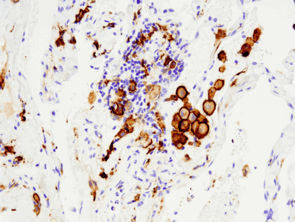 CD163 (D6U1J) Rabbit mAb