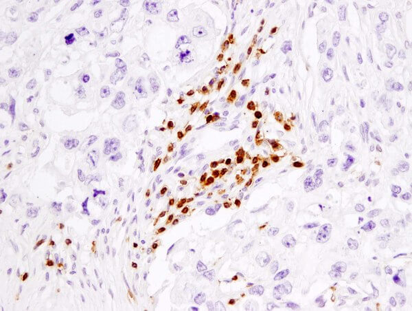 CD3 85061 human breast carcinoma