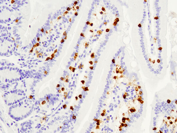 CD8 98941 mouse small intestine