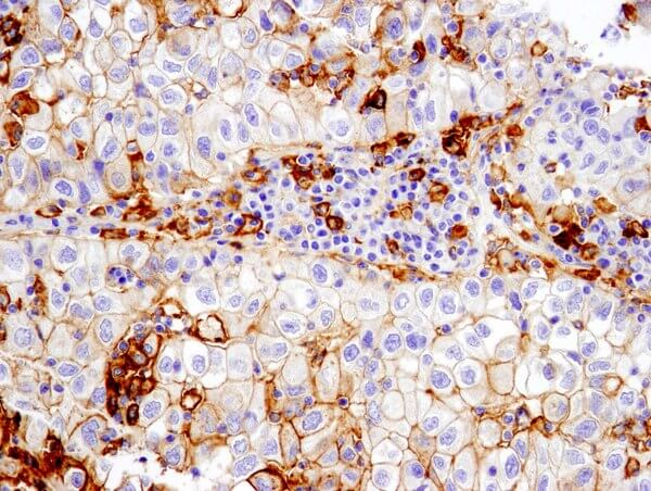 PD-L1 13684 non small cell lung carcinoma