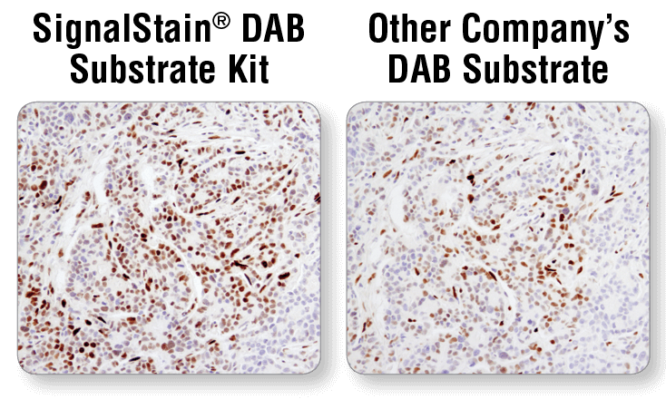 IHC DAB substrate 9145 8059