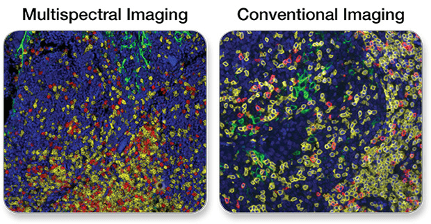 IHC multispectral vs conventional